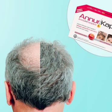 Il rimedio per la perdita dei capelli ora c'è